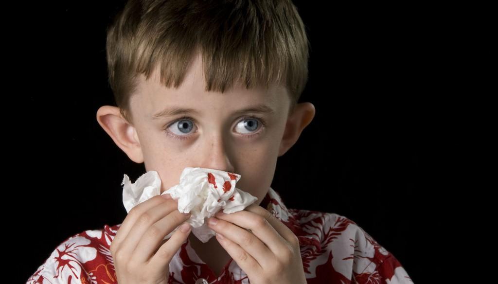come-fermare-il-sangue-dal-naso.jpg